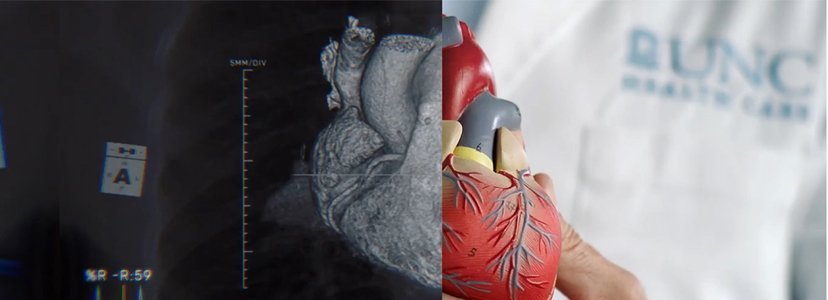 x-ray of heart paired next to model of heart