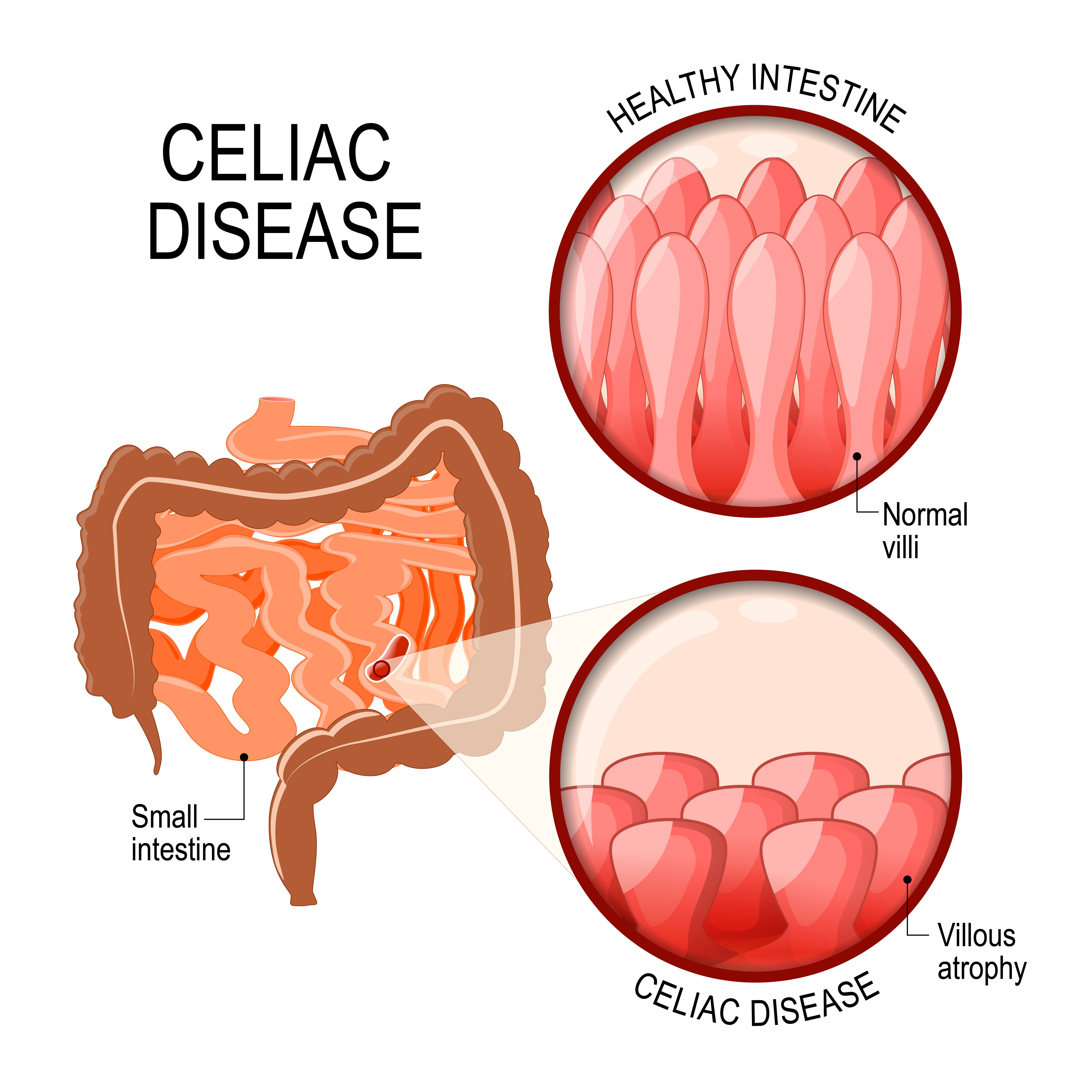 Celiac Disease diagram